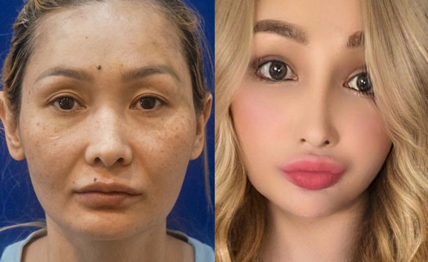TN Before&After